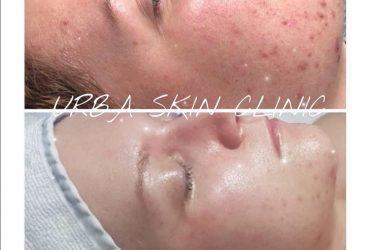 skin consult