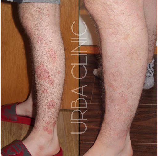Psoriasis & Eczema Management